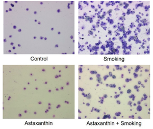 Fig. 2 Inflammatory cells in BALF<br />(bronchoalveolar lavage fluid)