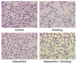 Fig. 3 Lung tissue<br />(MLI: mean linear intercept, Destructive index)