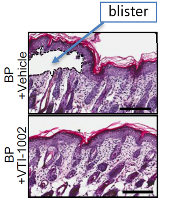 No blistering was observed in a mouse model of pemphigoid    diseases that was topically treated with granzyme B inhibitor (VIT-1002).