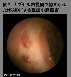 薬剤性小腸傷害の原因を解明 図3