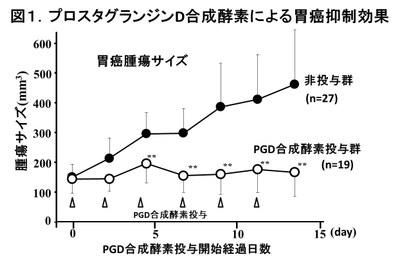 141225_Gastric cancer-1.jpg