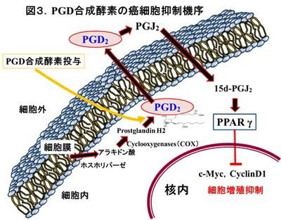141225_Gastric cancer-3.jpg