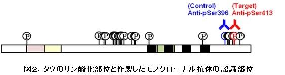 150109_Alz2.jpg