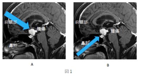 A 開頭手術を行う場合 B 経鼻神経内視鏡手術を行う場合