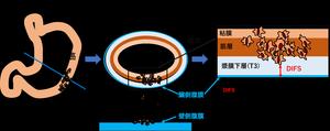 図1:胃漿膜表面(腹膜)から腫瘍細胞までの距離(DIFS)測定