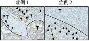 図1  肝がんの病理組織