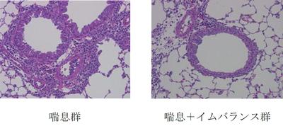 肺組織における気管支周囲の炎症(紫色)。イムバランスを投与した群では炎症が抑制されている。